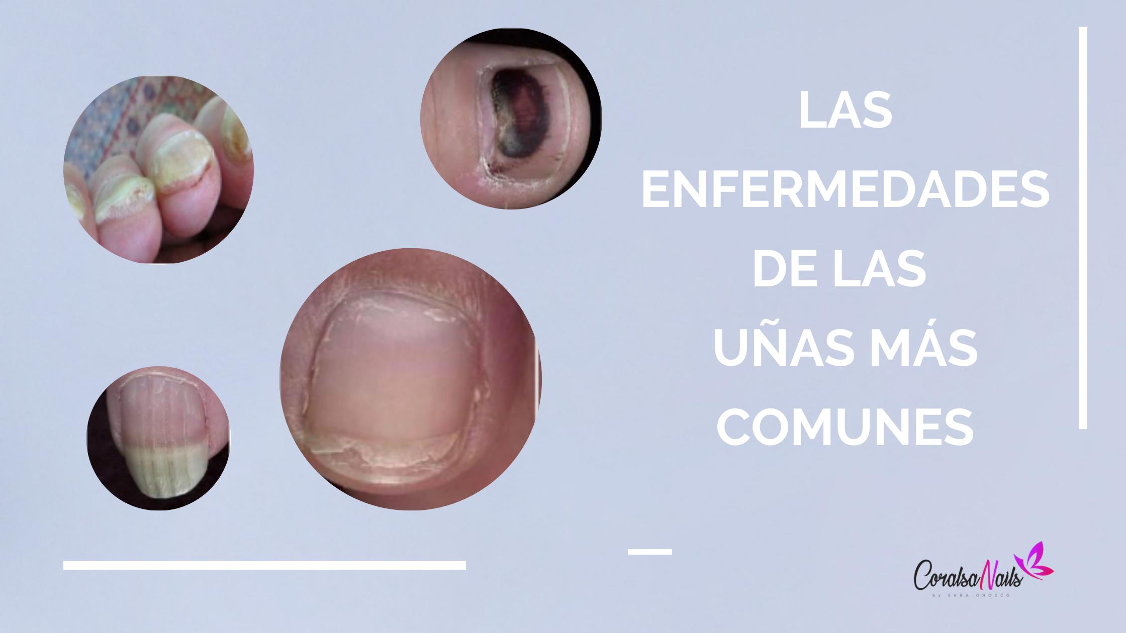 Las Enfermedades de las uñas más comunes